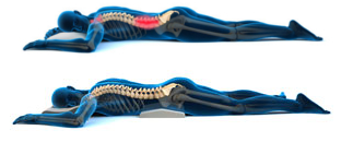 7 Daily Activities That Are Aggravating Your Sciatica Pain
