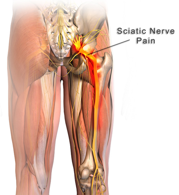 sciatic treatment