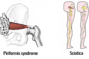 sciatica-or-piriformis-syndrome-featured